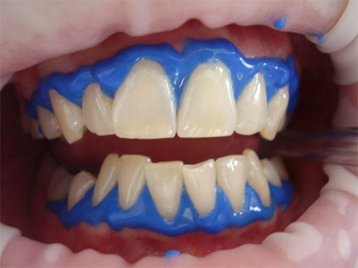 Профессиональная гигиена полости рта, снятие зубных отложений