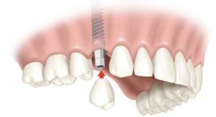 Восстановление зуба на имплантате
