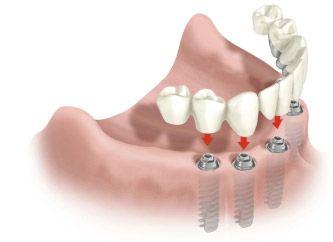 Восстановление челюсти на 4-х или 6-ти имплантатах