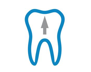 Удаление зуба и установка имплантата в один визит